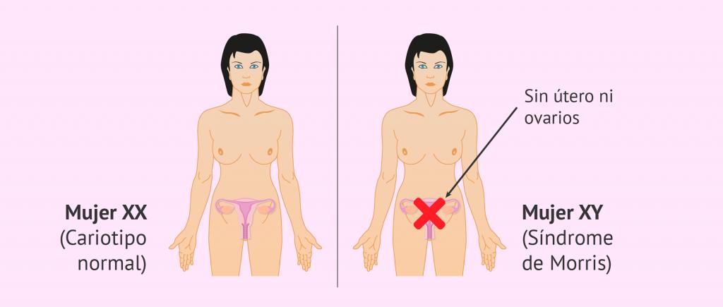 Mujer síndrome Morris
